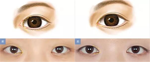 拯救单眼皮新娘的化妆术,化妆师必知!